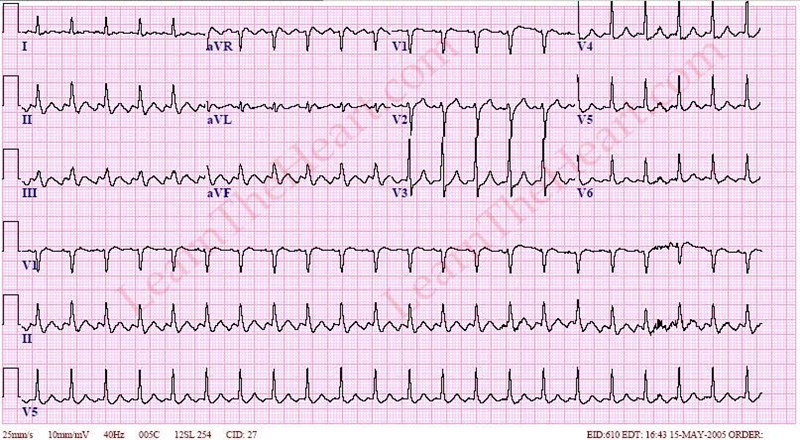 Atrial-Flutter2to1