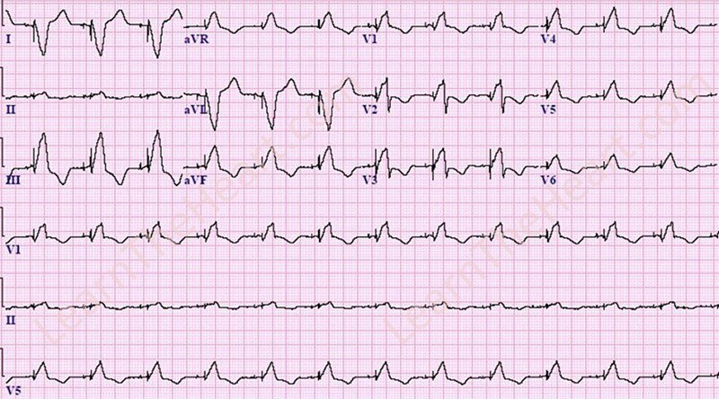 Biventricular Paced Rhythm ECG | LearntheHeart.com