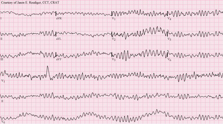 VentricularFibrillationECG
