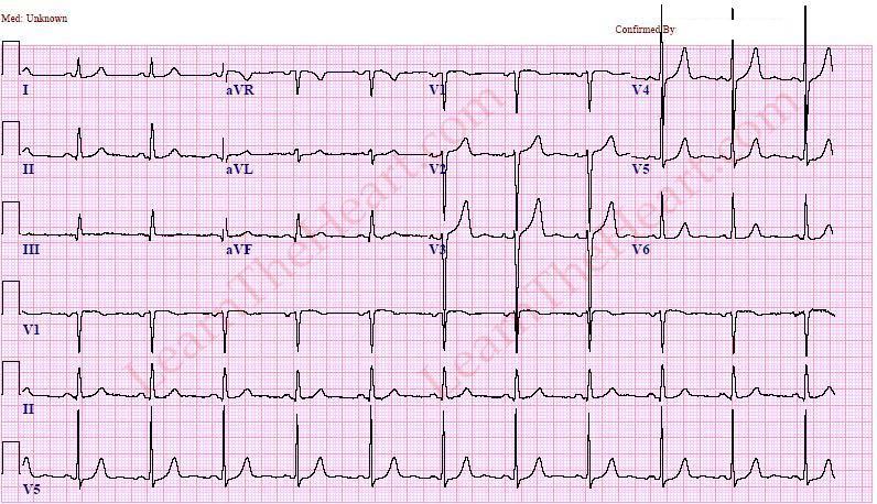 left ventricular hypertrophy  example 1