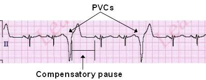 Premature Ventricular Contractions (PVCs) ECG Review - Criteria and  Examples | LearntheHeart.com