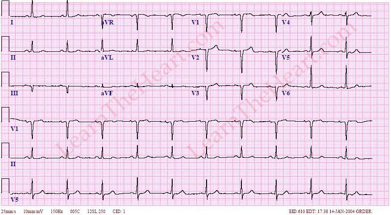 how to easily read ecg