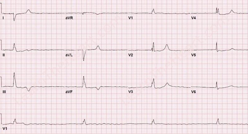 AtrialFibrillationBradycardiaECG
