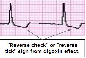 DigoxinReverseCheck