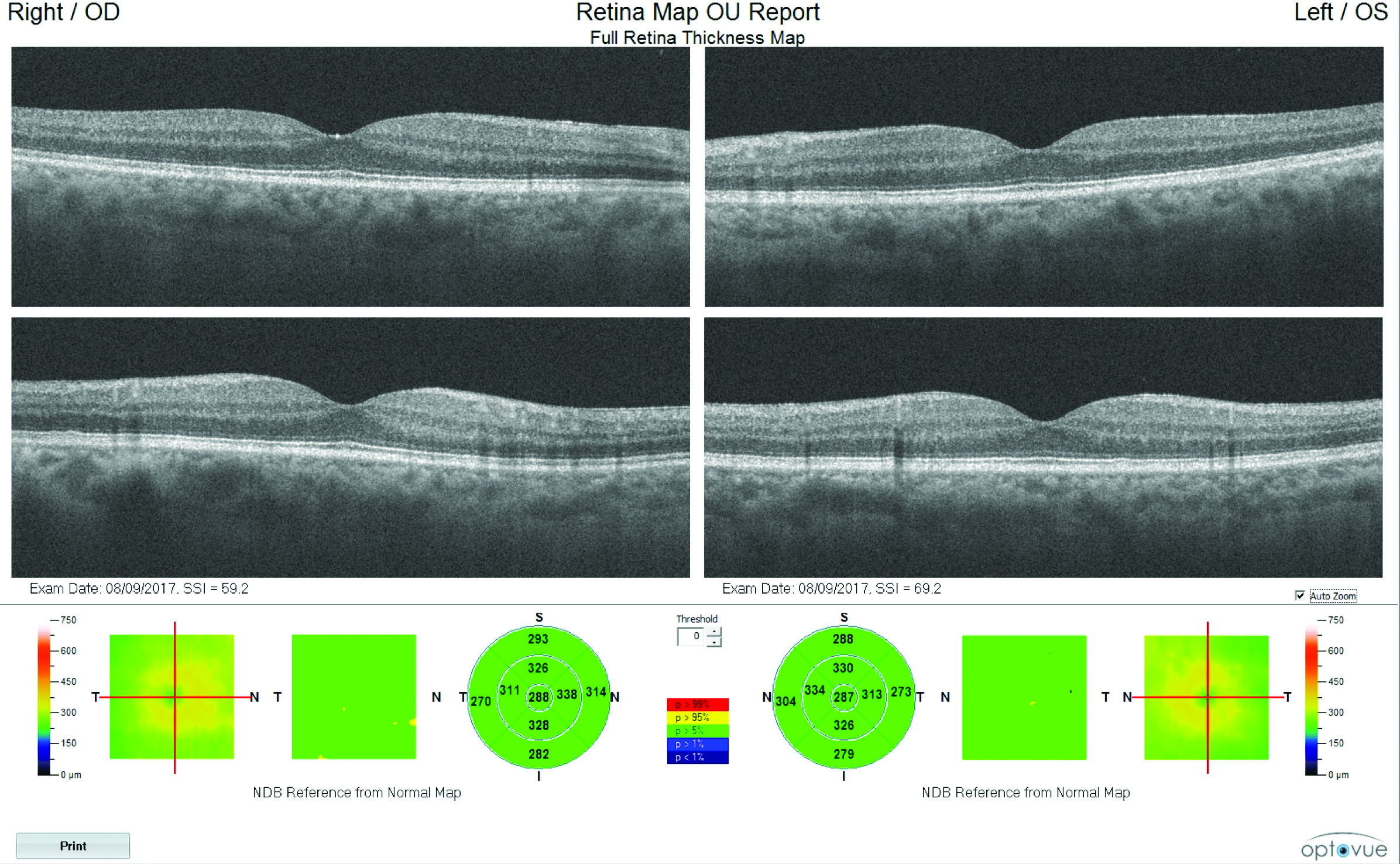 Retina map macular OCT of both eyes showing normal macular thickness with no macular edema or thinning.