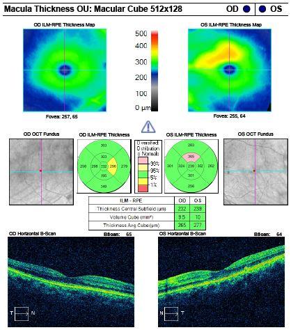 Macular cube OCT of the left eye ruled out edema. Source: Joseph Hallak, OD, PhD, FAAO, and Danielle Kalberer, OD, FAAO