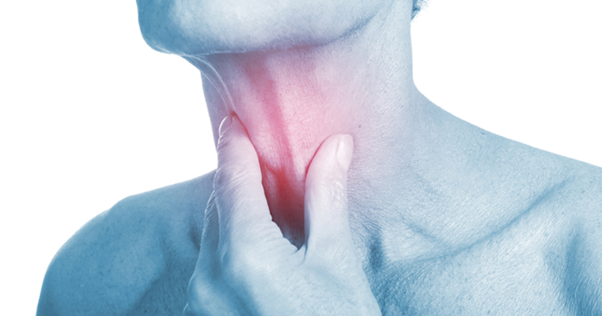 Image of throat cancer