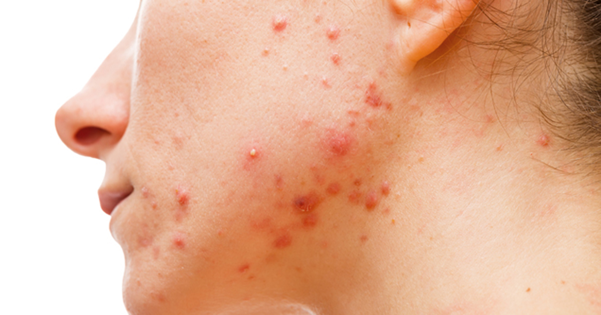 acne - FDA approves Aklief for acne on face, trunk